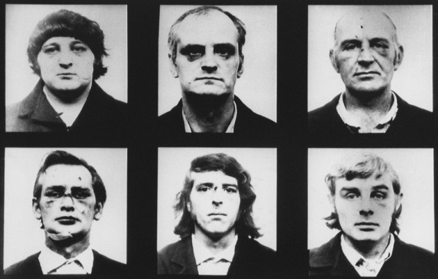 Birmingham Six Photos Bruises